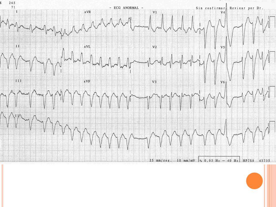 Caso clínico EF: arrítmico. Sin soplos. A FVM de 140 lpm. Resto de exploración normal. TA: 95/45. Tª: 37,3. Sat O2: 95% Eupneico. Glu: 102 mg/dL.