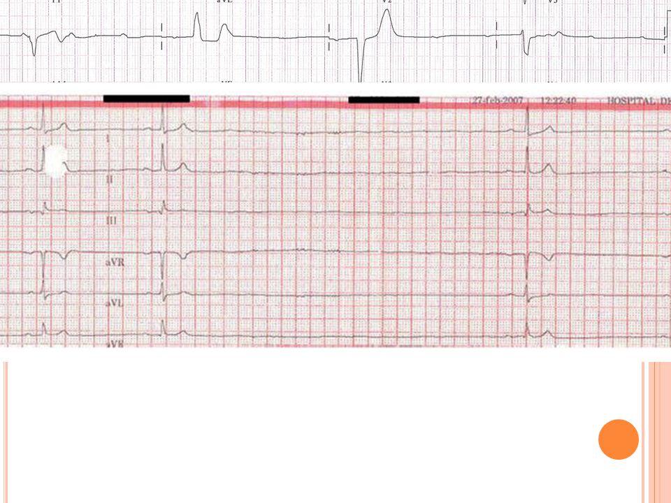 Caso clínico Se habla con cardiología y se intenta revertir a RS mediante cardioversión eléctrica.
