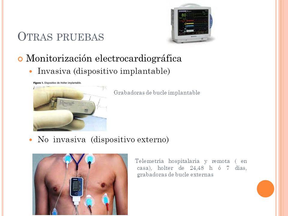 Otras pruebas Monitorización electrocardiográfica