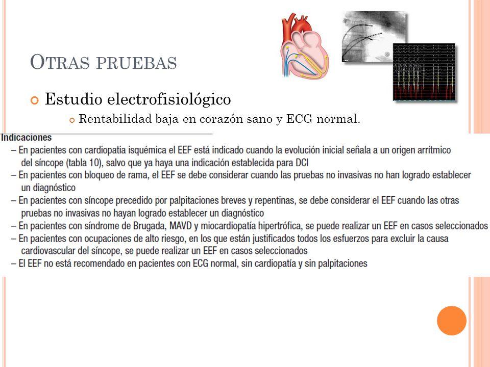 Otras pruebas Estudio electrofisiológico