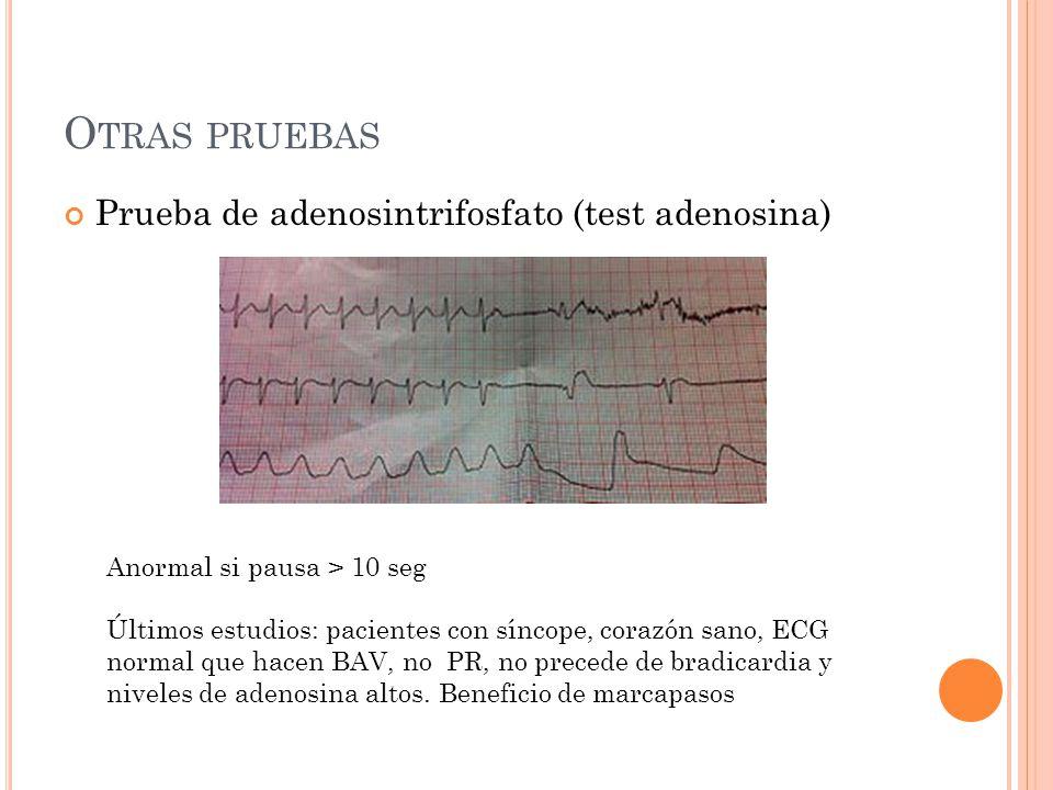 Otras pruebas Prueba de adenosintrifosfato (test adenosina)