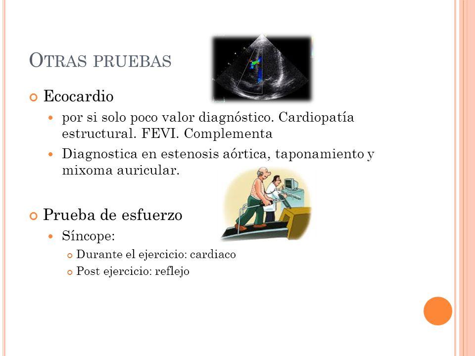 Otras pruebas Ecocardio Prueba de esfuerzo