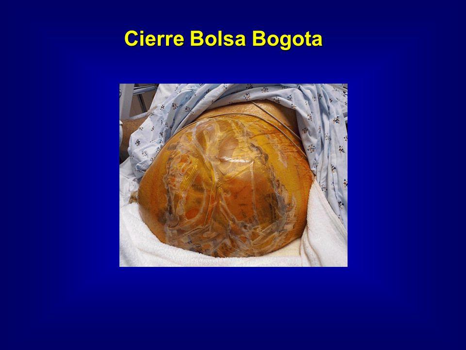 Cierre Bolsa Bogota