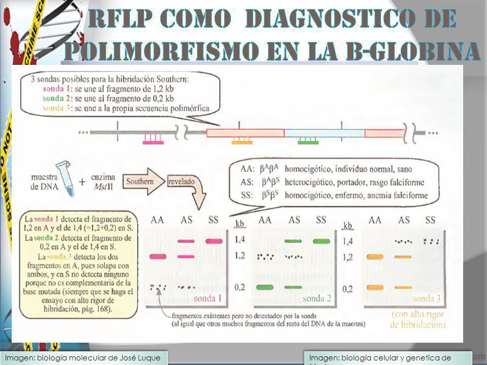 RFLP Como diagnostico de polimorfismo en la b-globina