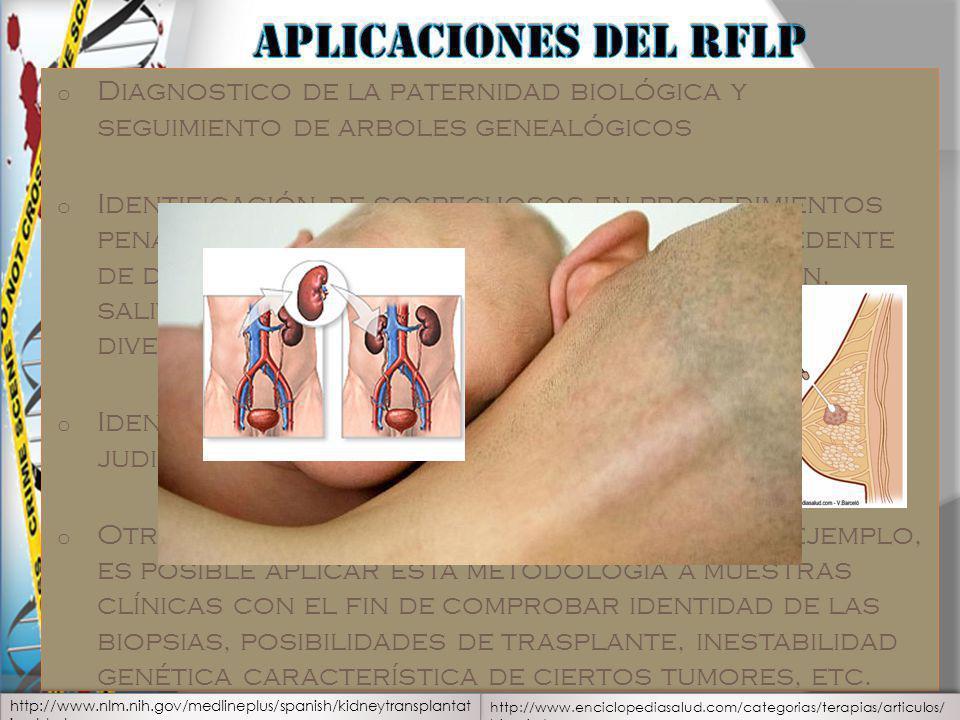 Aplicaciones del RFLP Diagnostico de la paternidad biológica y seguimiento de arboles genealógicos.