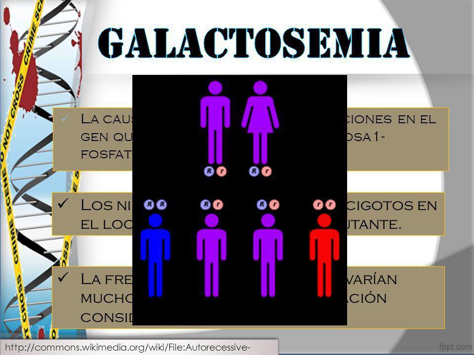 Galactosemia La causa mas frecuente son mutaciones en el gen que codifica la enzima galactosa1-fosfato uridiltrasferasa (GALT).