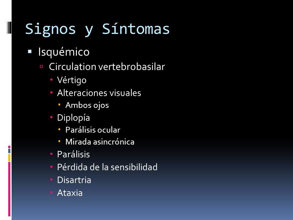 Signos y Síntomas Isquémico Circulation vertebrobasilar Vértigo