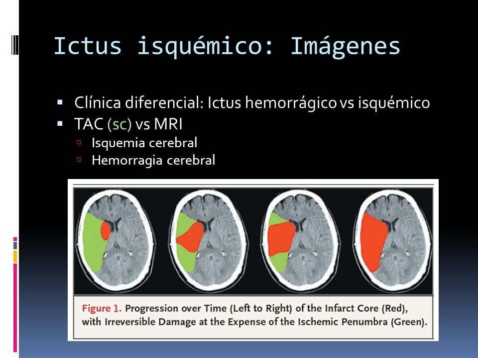 Ictus isquémico: Imágenes