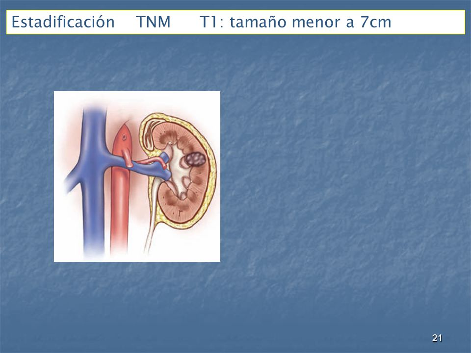 Estadificación TNM T1: tamaño menor a 7cm