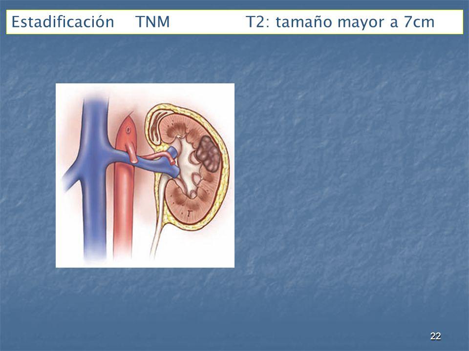 Estadificación TNM T2: tamaño mayor a 7cm