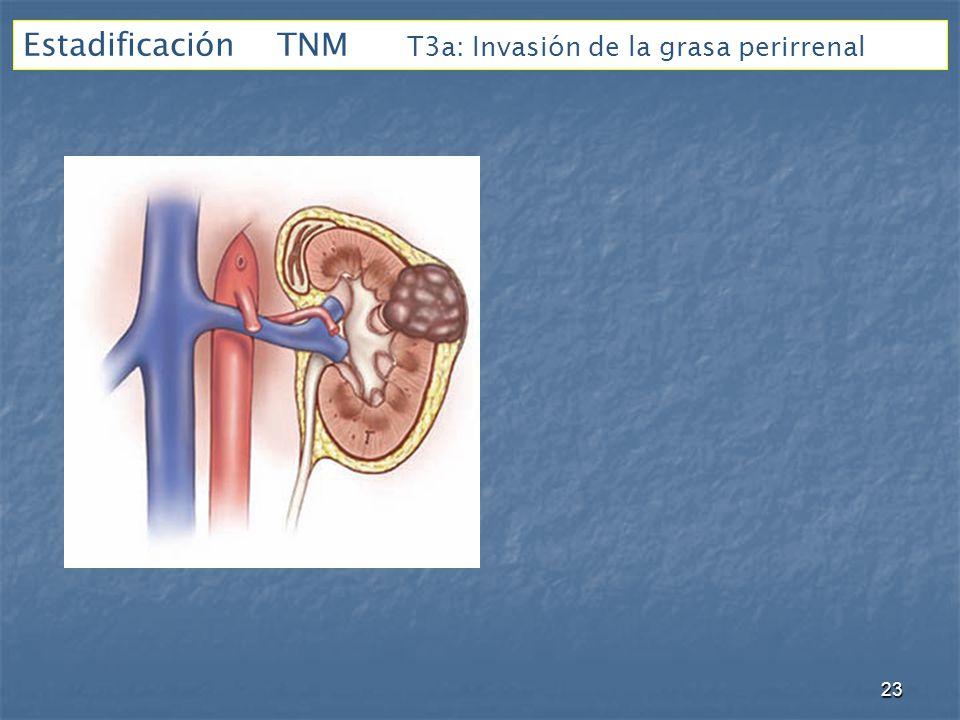 Estadificación TNM T3a: Invasión de la grasa perirrenal