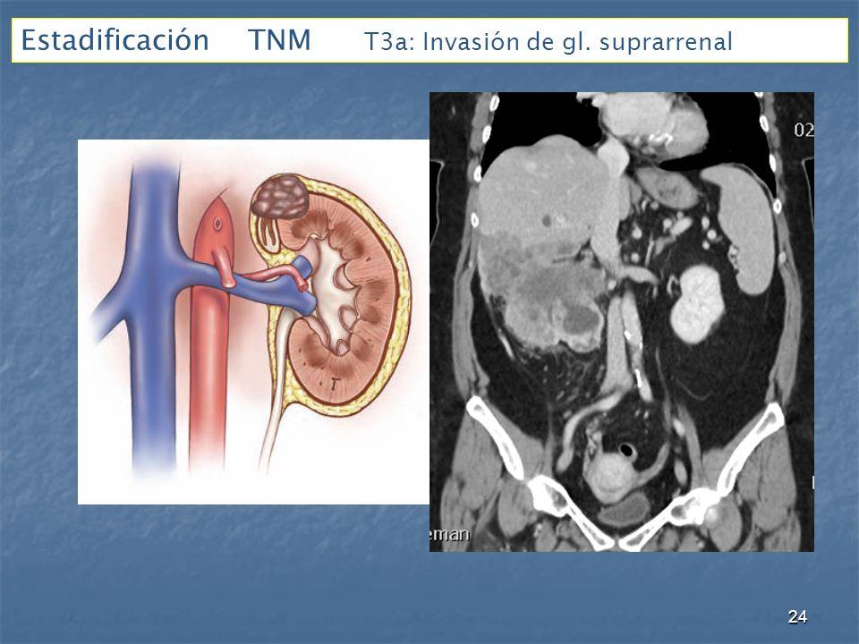 Estadificación TNM T3a: Invasión de gl. suprarrenal