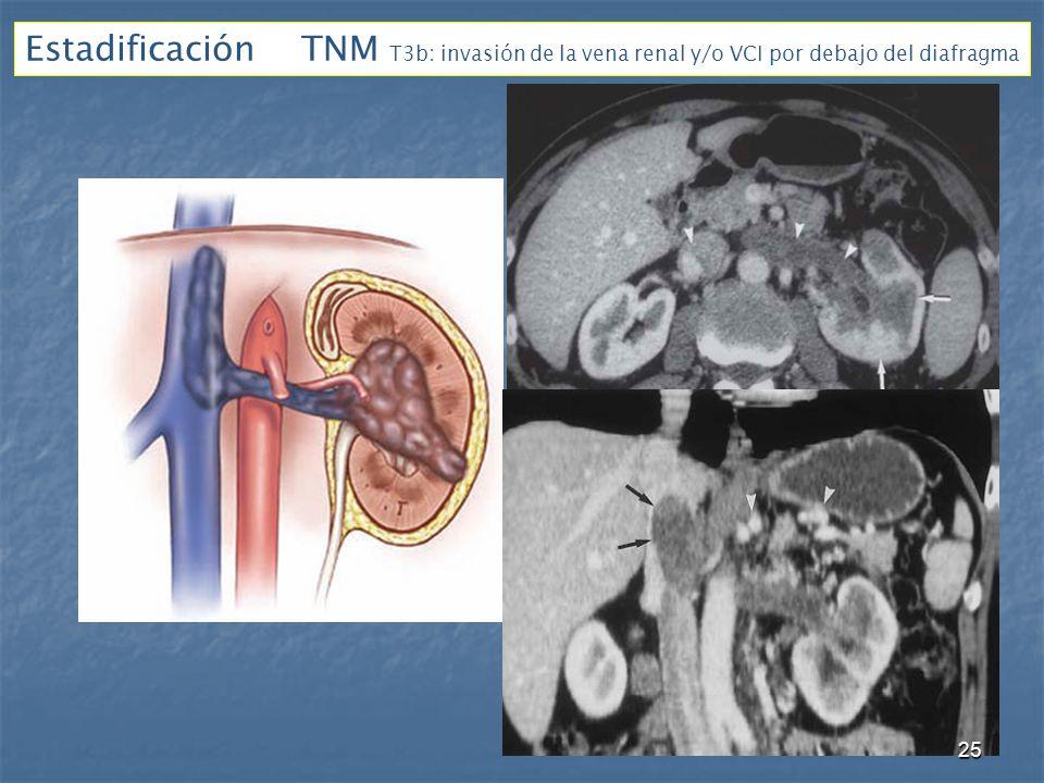 Estadificación TNM T3b: invasión de la vena renal y/o VCI por debajo del diafragma