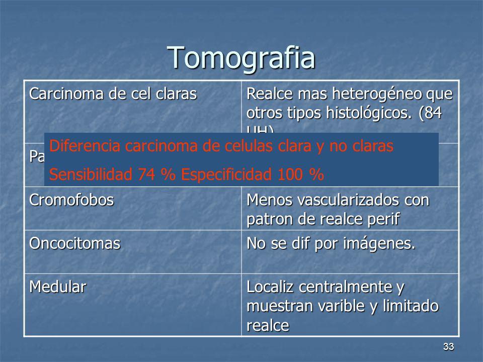 Tomografia Carcinoma de cel claras