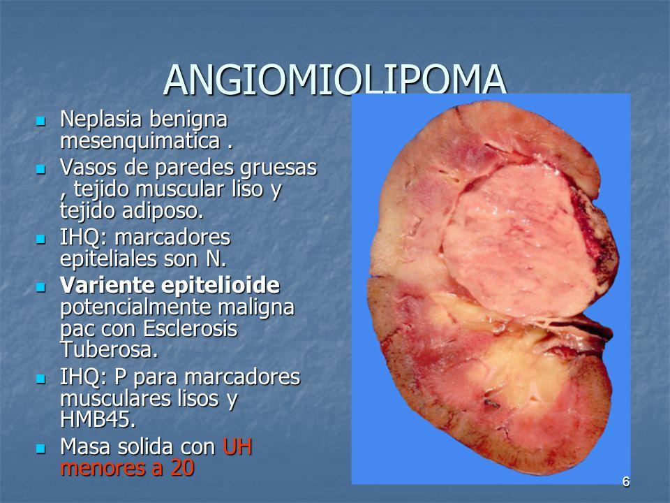 ANGIOMIOLIPOMA Neplasia benigna mesenquimatica .