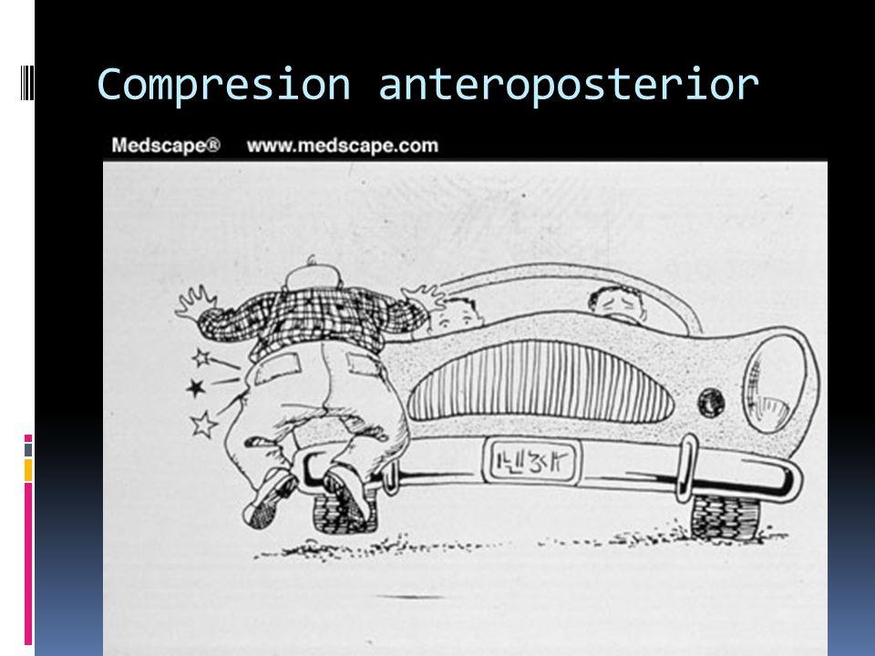 Compresion anteroposterior