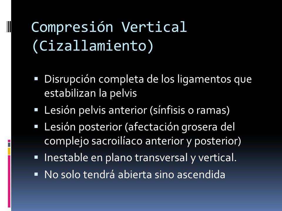 Compresión Vertical (Cizallamiento)