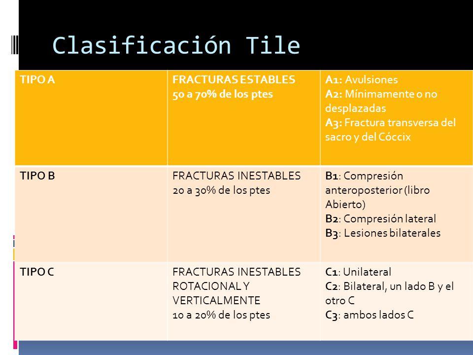 Clasificación Tile TIPO A FRACTURAS ESTABLES 50 a 70% de los ptes