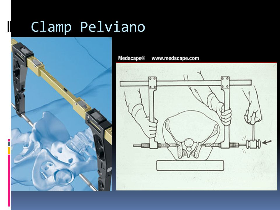 Clamp Pelviano