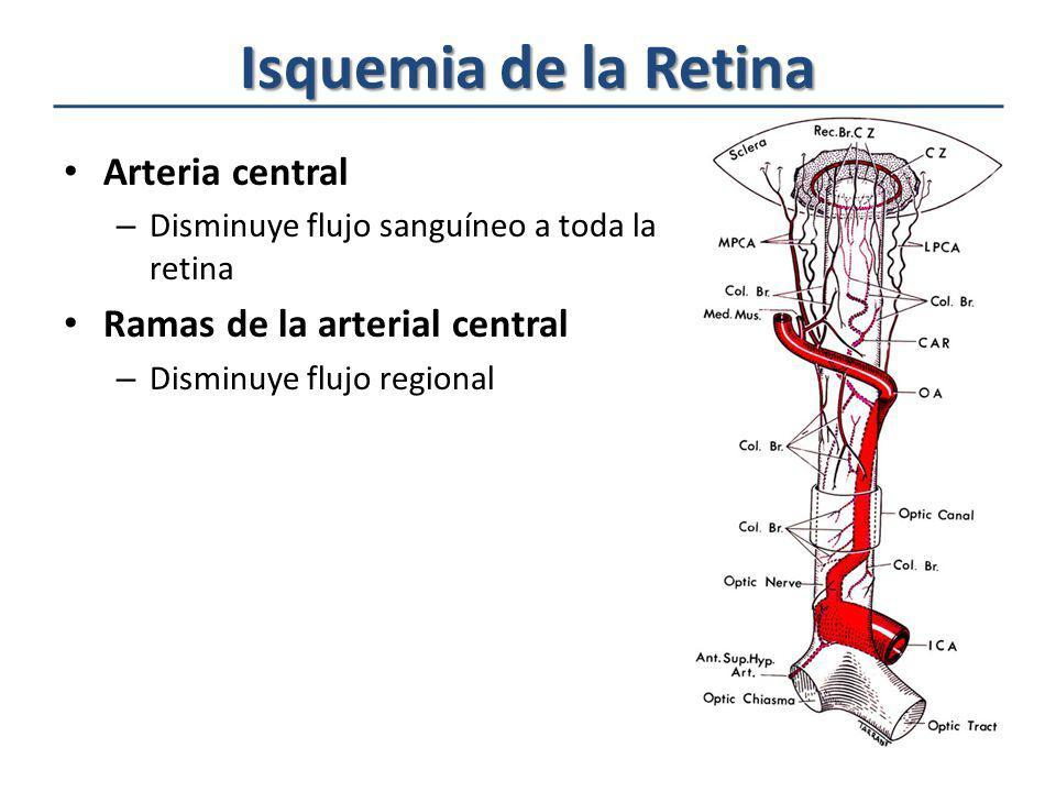 Isquemia de la Retina Arteria central Ramas de la arterial central