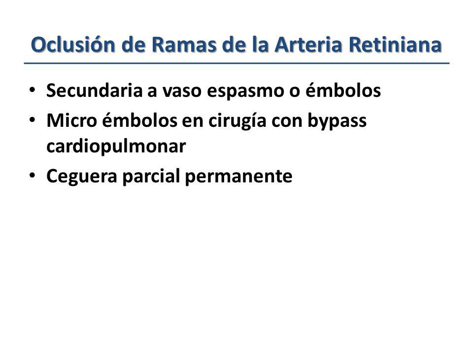 Oclusión de Ramas de la Arteria Retiniana