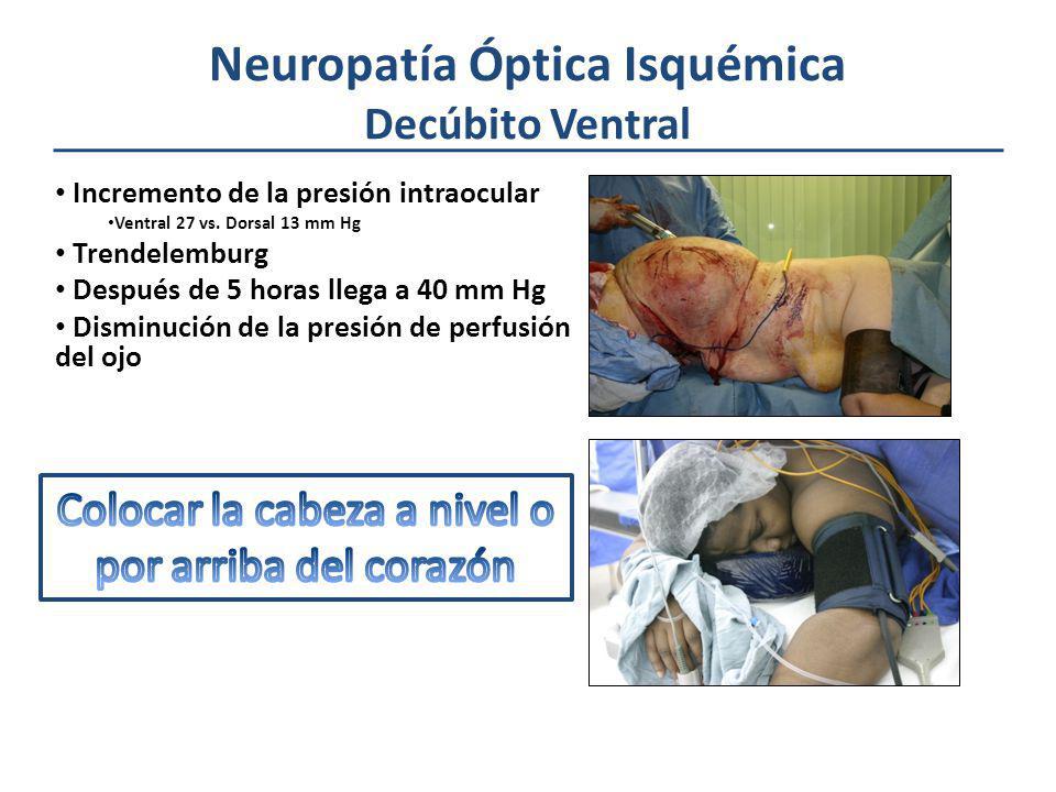 Neuropatía Óptica Isquémica Decúbito Ventral