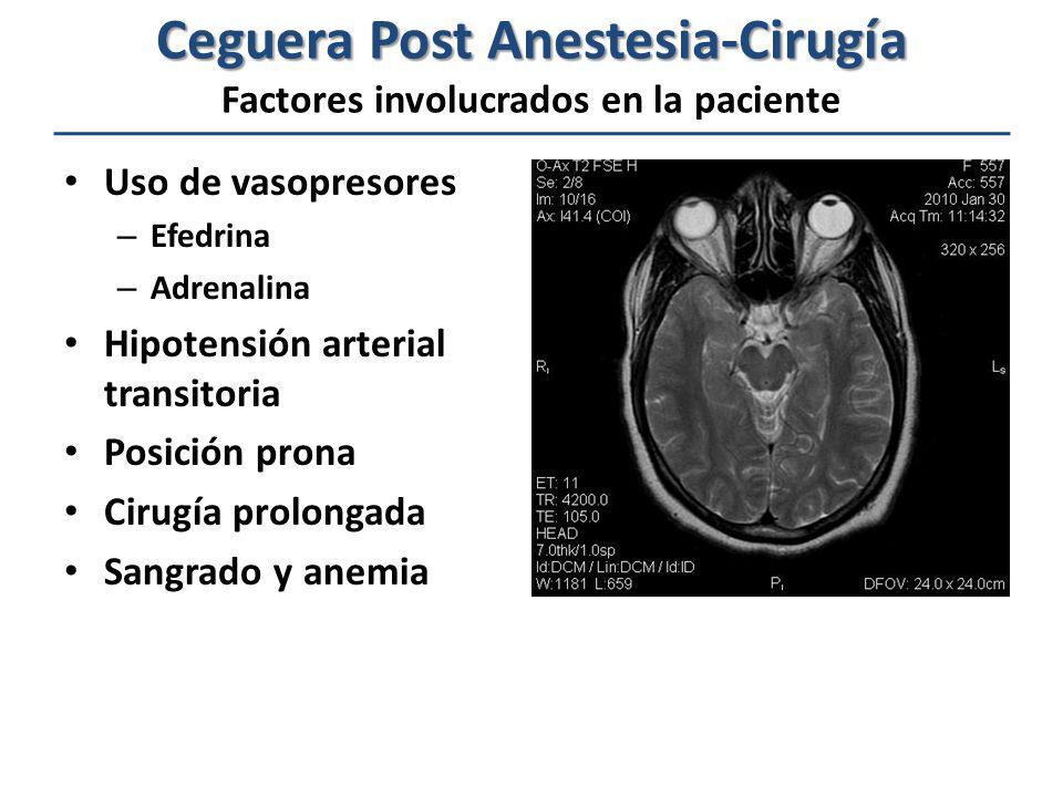 Ceguera Post Anestesia-Cirugía Factores involucrados en la paciente