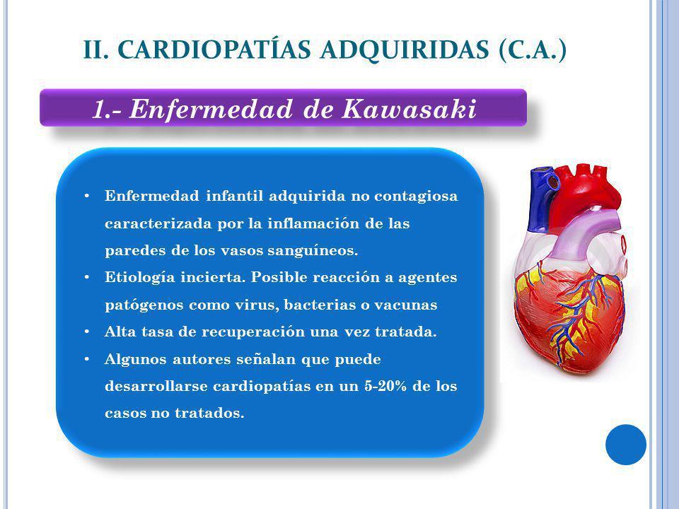 II. CARDIOPATÍAS ADQUIRIDAS (C.A.) 1.- Enfermedad de Kawasaki