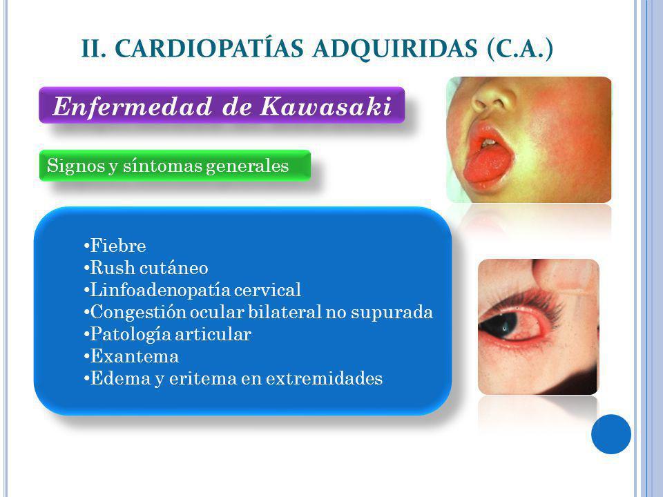 II. CARDIOPATÍAS ADQUIRIDAS (C.A.) Enfermedad de Kawasaki
