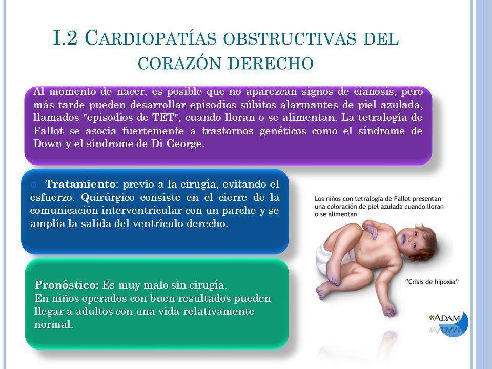 I.2 Cardiopatías obstructivas del corazón derecho