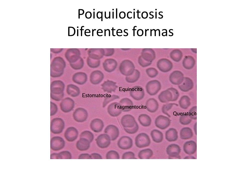 Poiquilocitosis Diferentes formas
