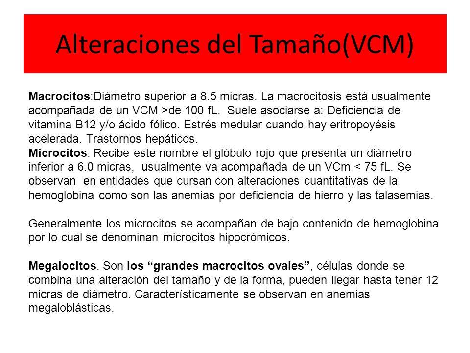 Alteraciones del Tamaño(VCM)
