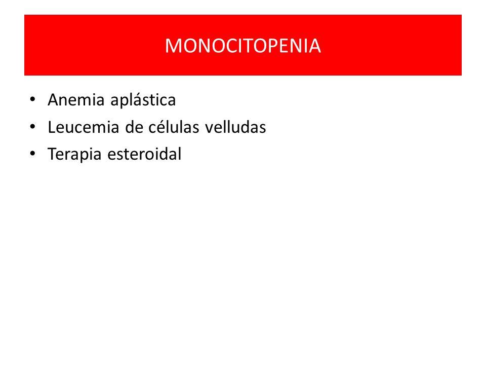 MONOCITOPENIA Anemia aplástica Leucemia de células velludas