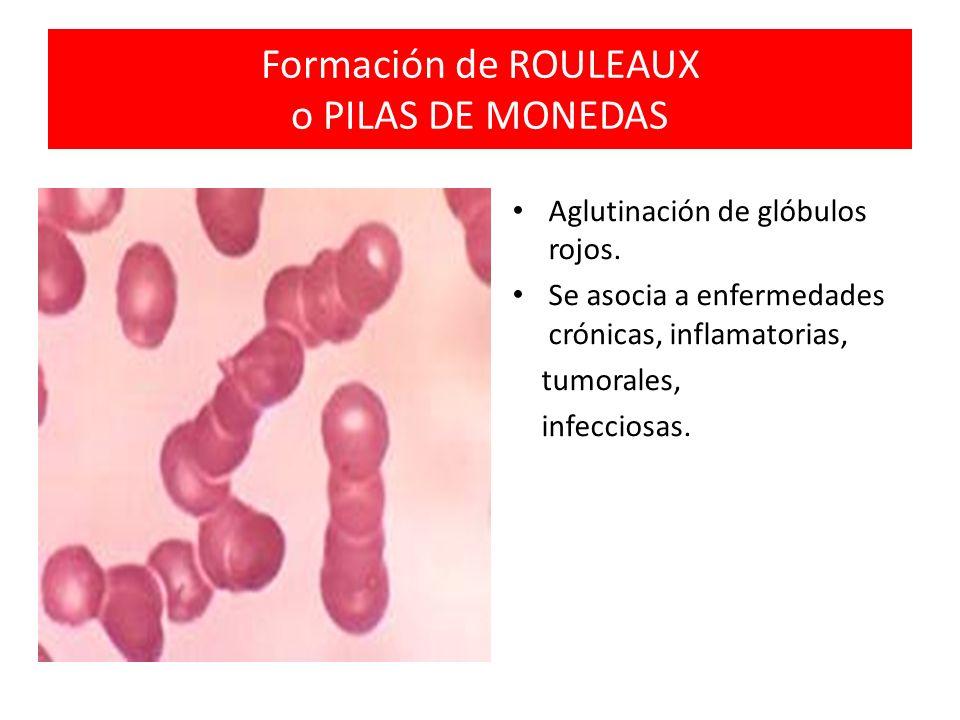 Formación de ROULEAUX o PILAS DE MONEDAS