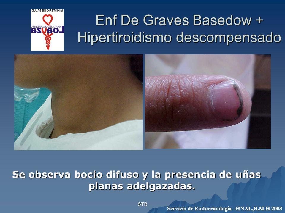 Enf De Graves Basedow + Hipertiroidismo descompensado