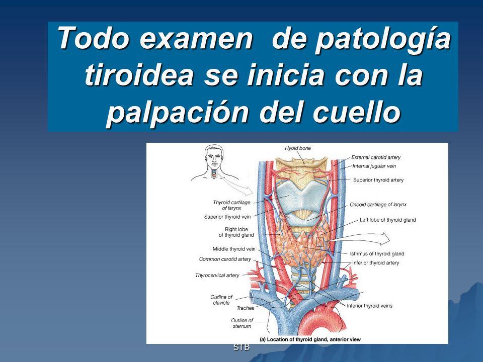 Todo examen de patología tiroidea se inicia con la palpación del cuello