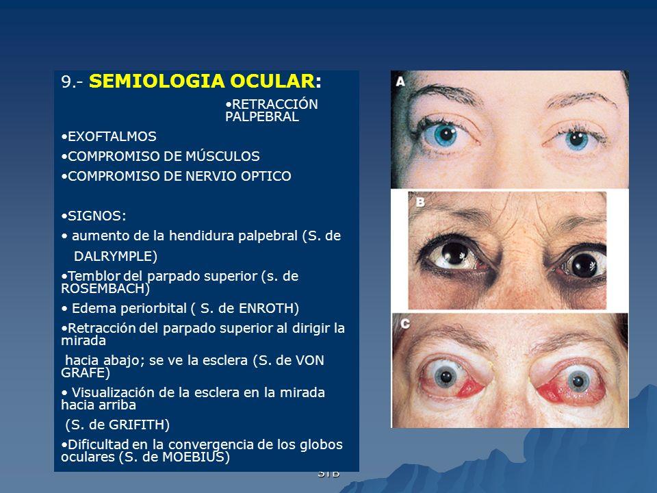 9.- SEMIOLOGIA OCULAR: RETRACCIÓN PALPEBRAL EXOFTALMOS