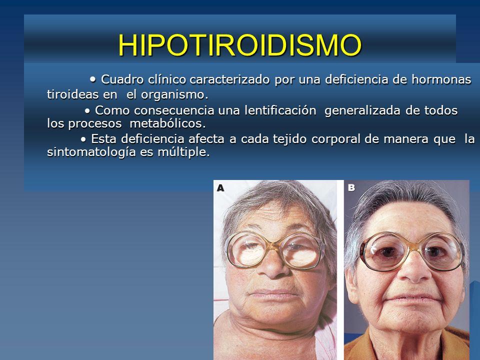 HIPOTIROIDISMO • Cuadro clínico caracterizado por una deficiencia de hormonas tiroideas en el organismo.