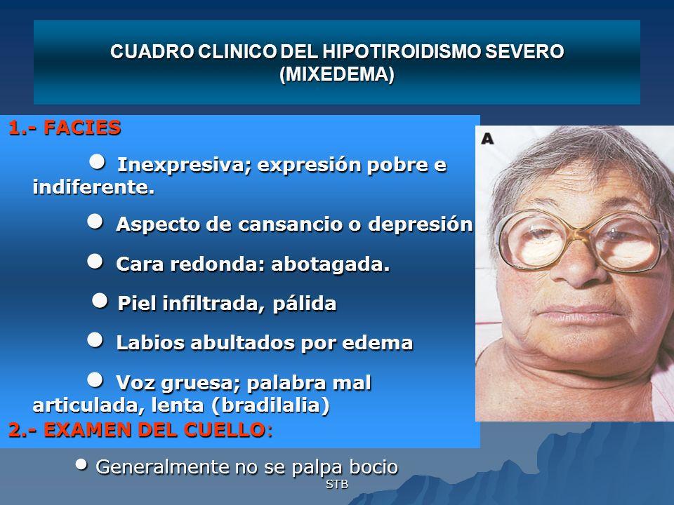 CUADRO CLINICO DEL HIPOTIROIDISMO SEVERO (MIXEDEMA)