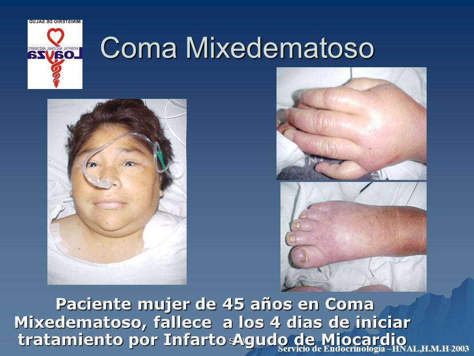 Coma Mixedematoso Paciente mujer de 45 años en Coma Mixedematoso, fallece a los 4 dias de iniciar tratamiento por Infarto Agudo de Miocardio.