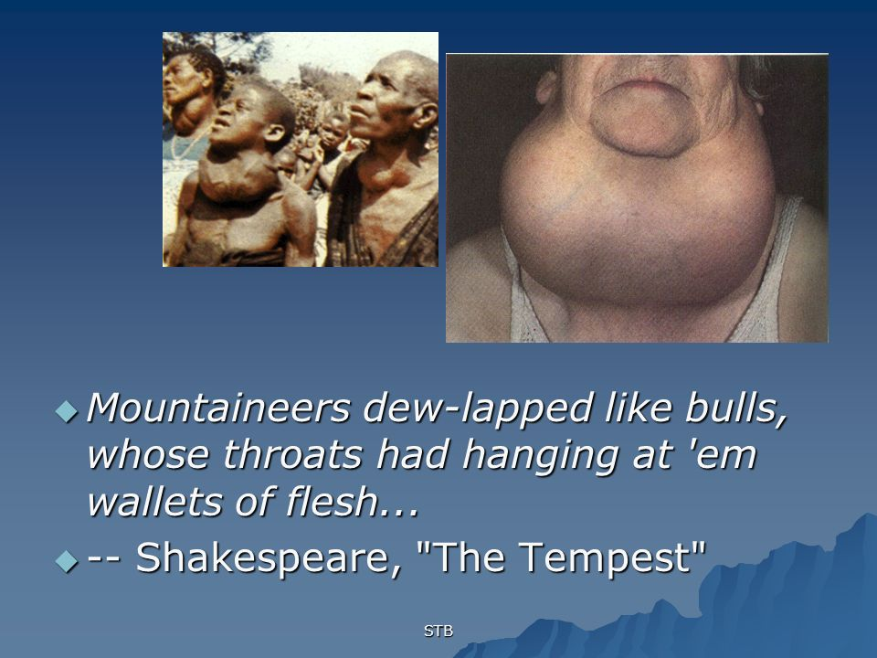 -- Shakespeare, The Tempest