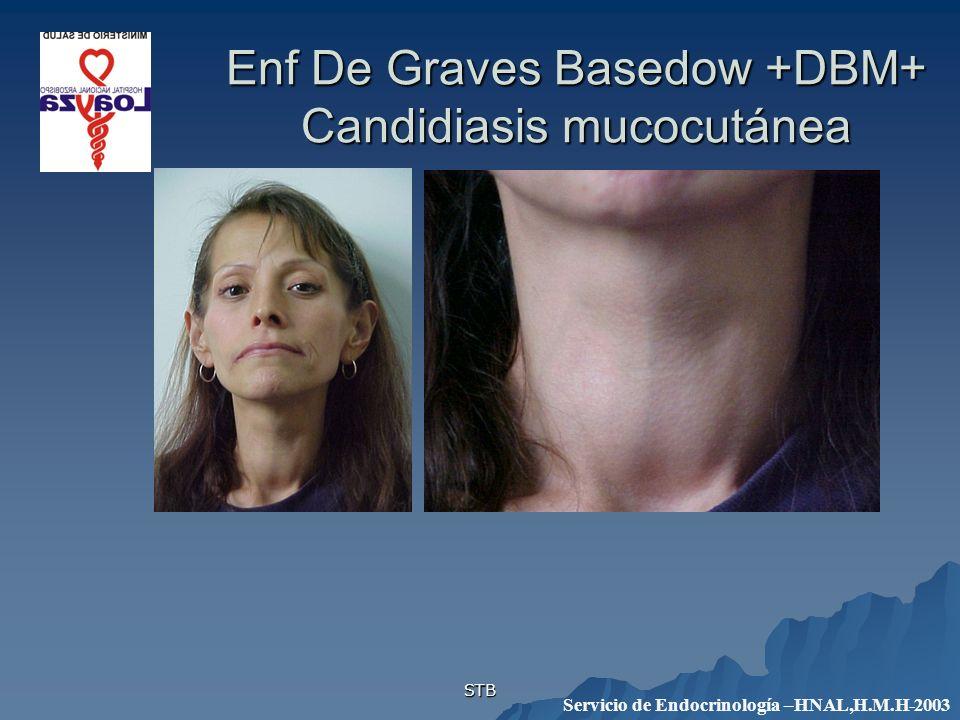 Enf De Graves Basedow +DBM+ Candidiasis mucocutánea