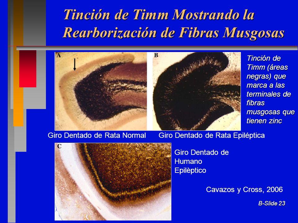 Tinción de Timm Mostrando la Rearborización de Fibras Musgosas
