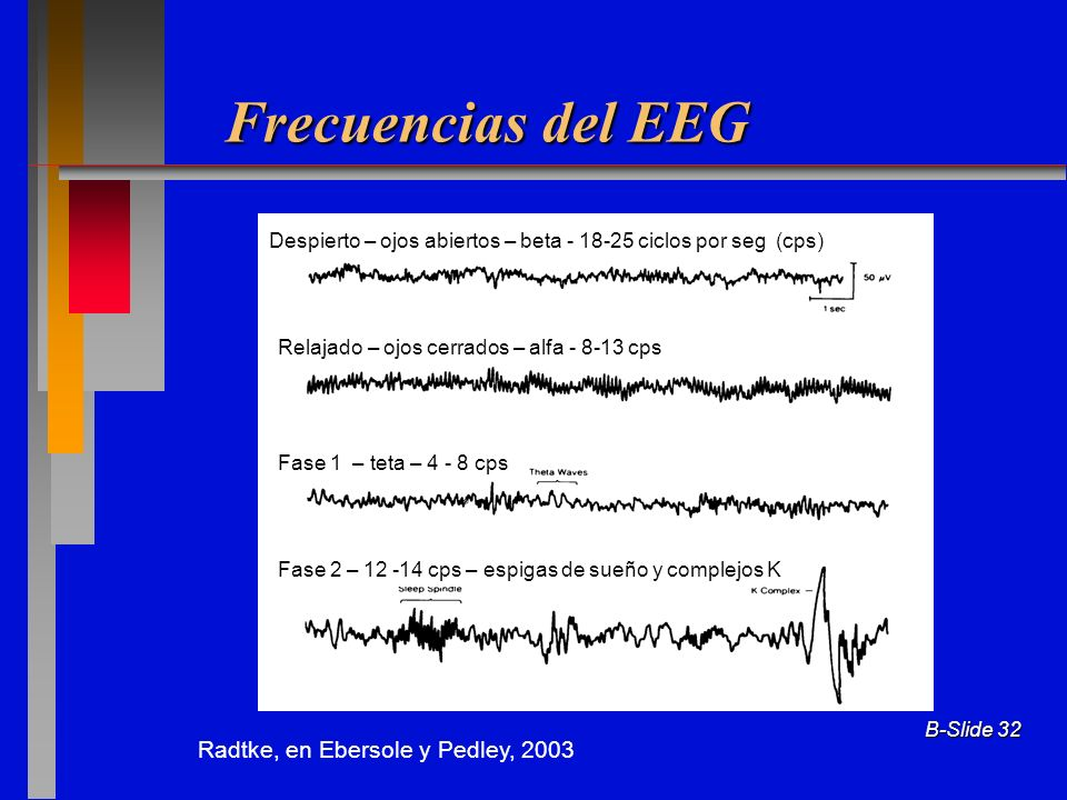 Frecuencias del EEG Radtke, en Ebersole y Pedley, 2003