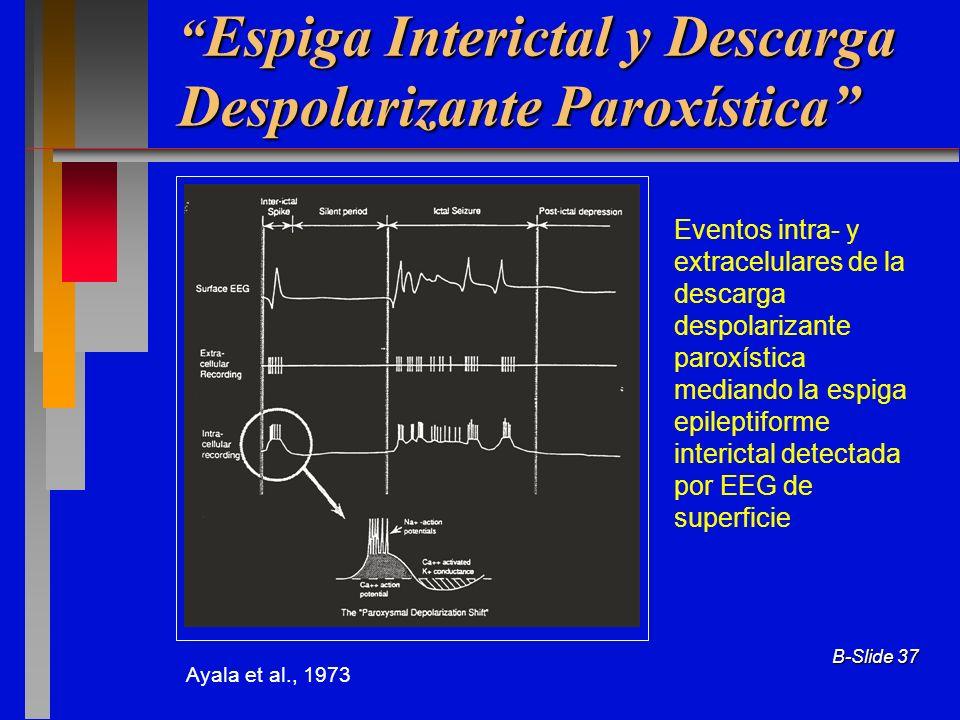 Espiga Interictal y Descarga Despolarizante Paroxística