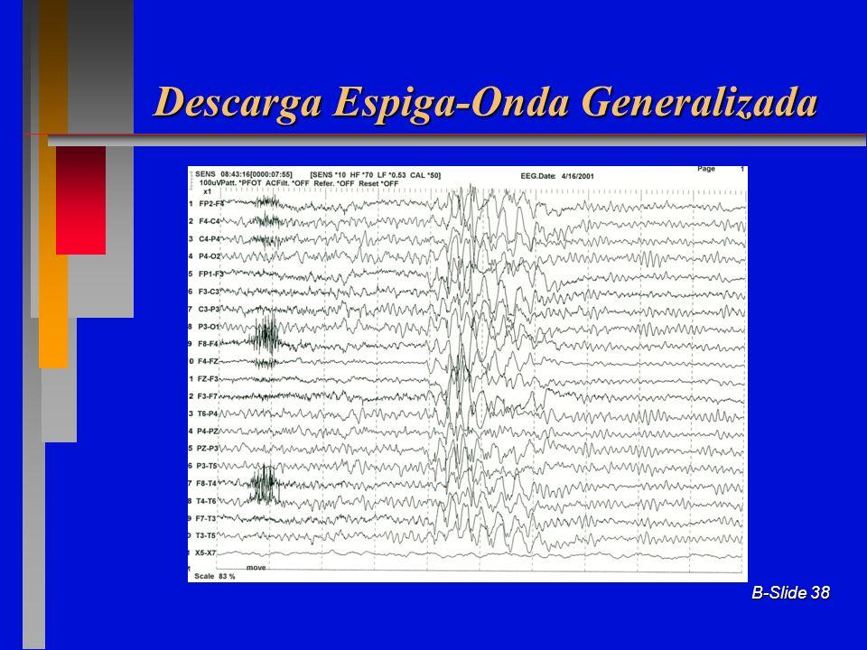 Descarga Espiga-Onda Generalizada