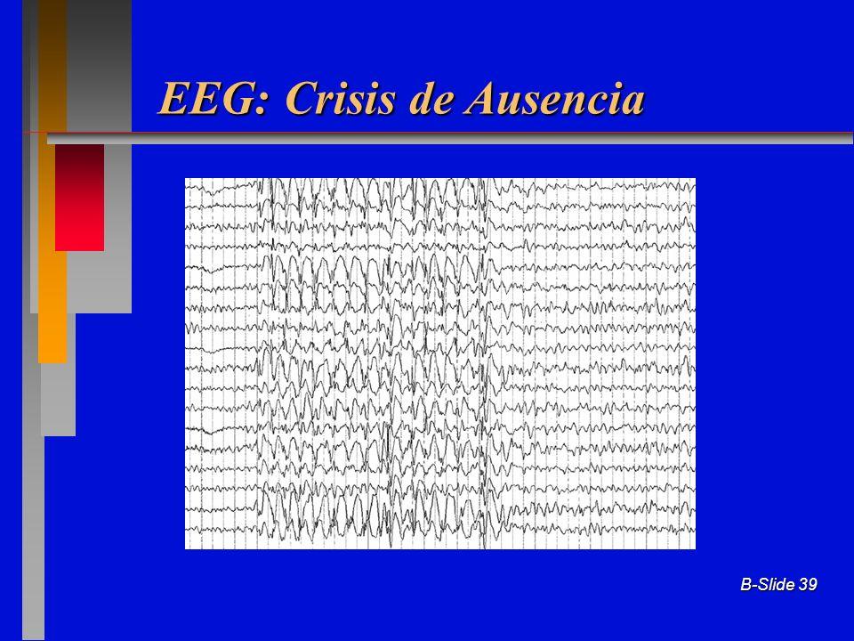 EEG: Crisis de Ausencia