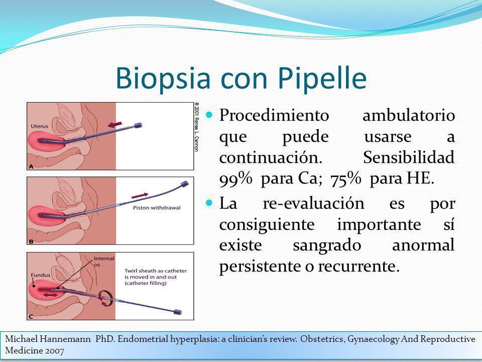 Biopsia con Pipelle Procedimiento ambulatorio que puede usarse a continuación. Sensibilidad 99% para Ca; 75% para HE.