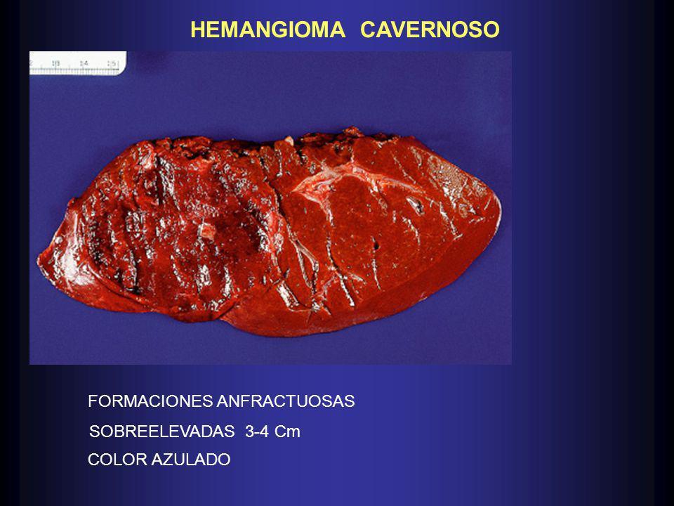 HEMANGIOMA CAVERNOSO FORMACIONES ANFRACTUOSAS SOBREELEVADAS 3-4 Cm