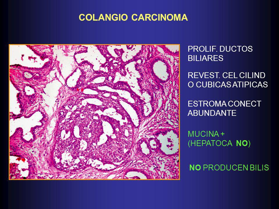 COLANGIO CARCINOMA PROLIF. DUCTOS BILIARES REVEST. CEL CILIND